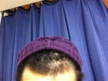 20代男、ミノタブ単独使用で薄毛・AGAを克服できるか!朝、夜5mg服用
