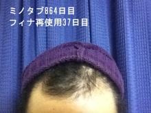 $20代男、ミノタブ単独使用で薄毛・AGAを克服できるか!朝、夜5mg服用